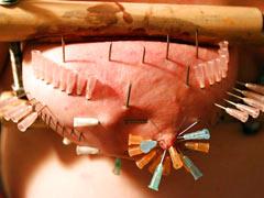 Sharp needles in tits